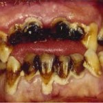 Everyone that drinks diet soda waits until their teeth gets this bad to do something about it.